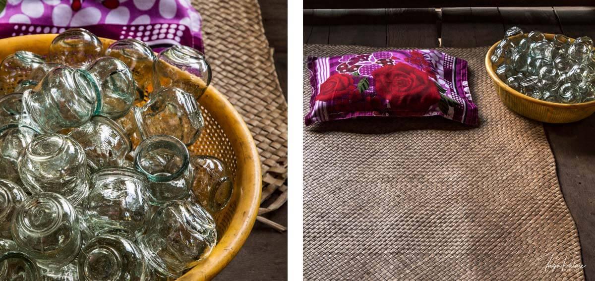 Schale mit Schröpfgläsern -Siem Reap